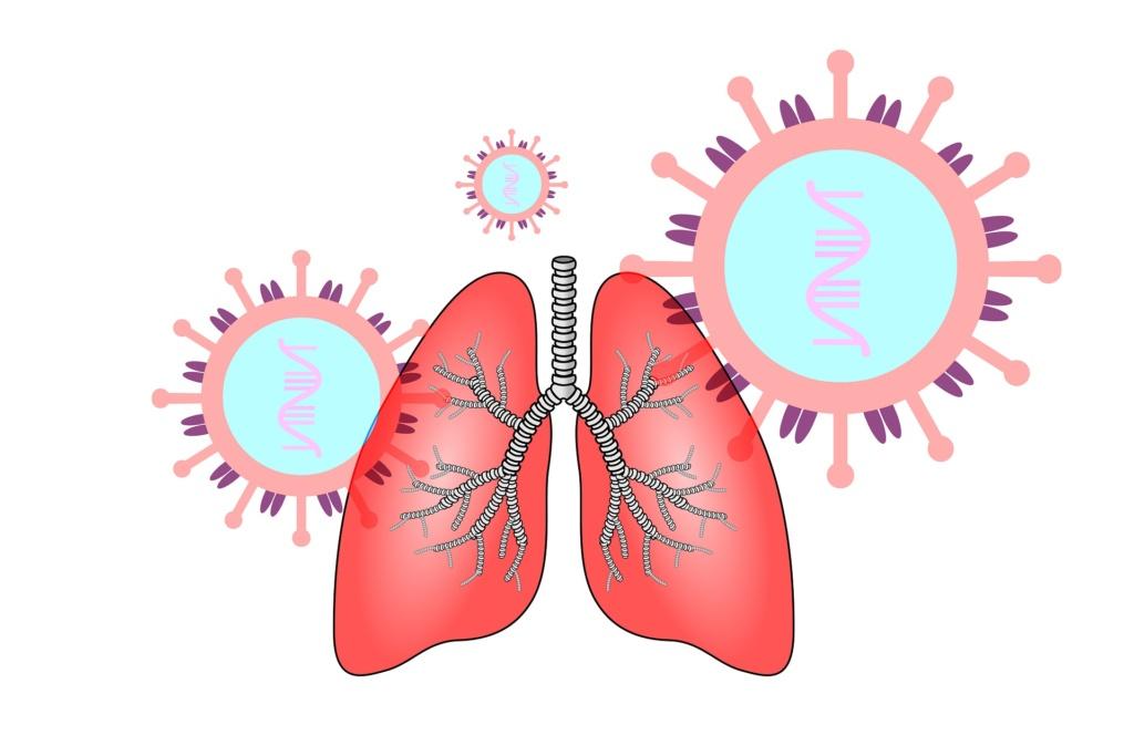 Coronavirus en pulmones